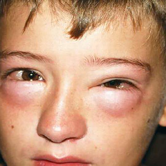 http://www.allergymedik.com/wp-content/uploads/2016/05/Anaphylaxis-b-540x540.jpg